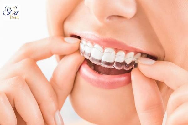 teeth problems