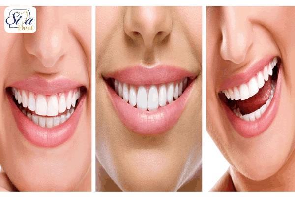 ویژگی بهترین دندان پزشک زیبایی