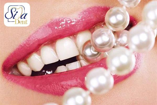 روش های درمان بد رنگی دندان ها