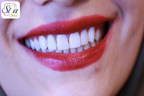 ايمپلنت دندان