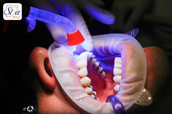 هزينه خدمات زيبايي دندان