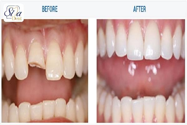 خدمات زيبايي دندان