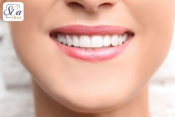 درمان بد رنگي دندان
