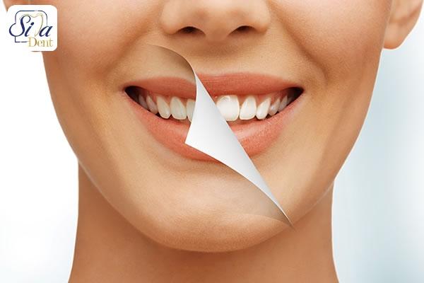 روش های دندانپزشکی زیبایی و ترمیمی
