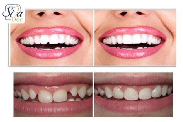 دندانپزشكي زيبايي