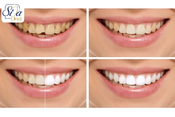 روش هاي داشتن دندان هايي سالم و زيبا