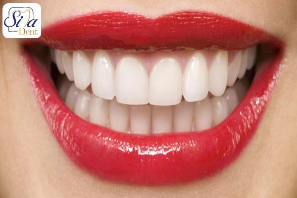 عوامل تاثير گذار بر لخند هاليوودي