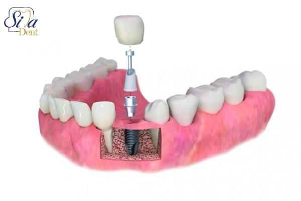مشاوره كامل دندان