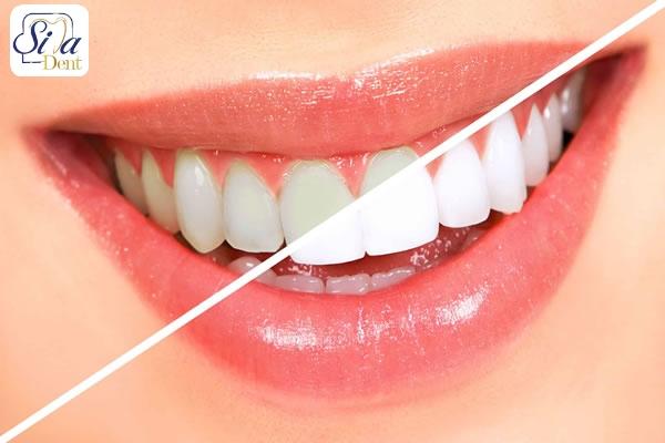 بلیچینگ از روش های زیبایی دندان