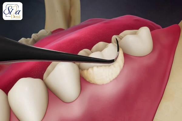 مراحل جرمگيري دندان