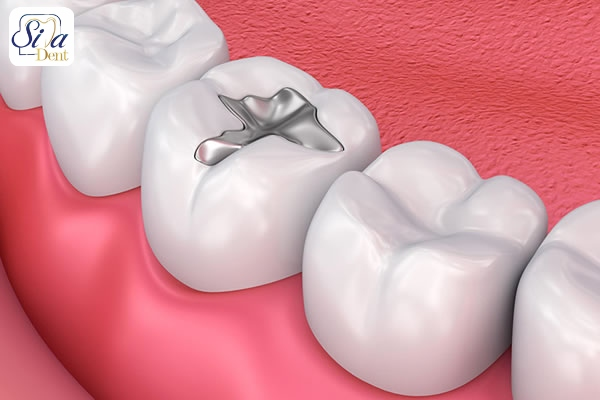 مزايا و معايب آمالگام دندان