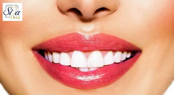 خدمات اصلاح طرح لبخند