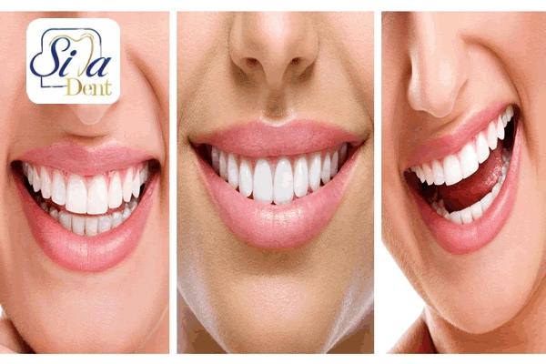 ونیز از خدمات زیبایی دندان