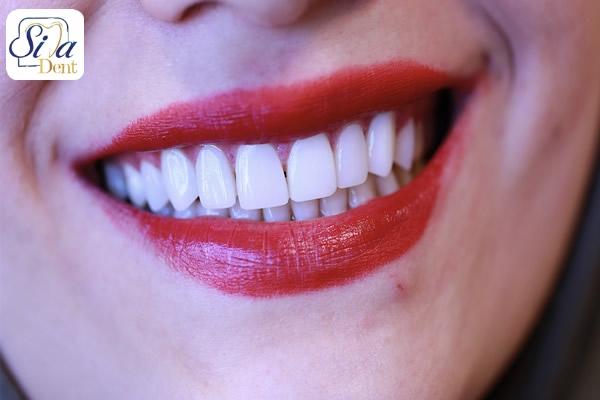 اصلاح رح لبخند