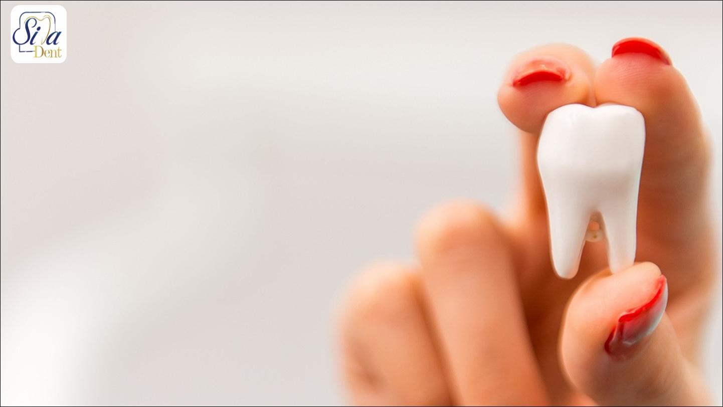 ايمپلنت دندان جلو