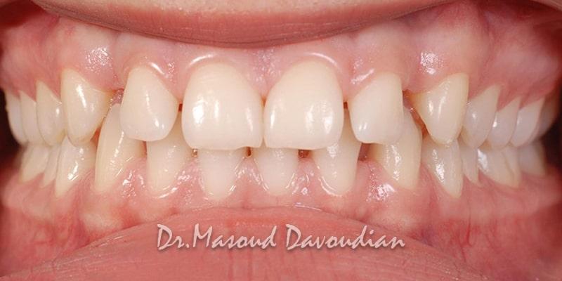 دندان های فاصله دار، کیس ۱
