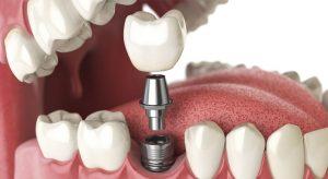 کاشت دندان, ایمپلنت