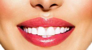 اصلاح طرح لبخند, اصلاح طرح لبخند