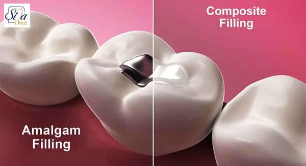 آمالگام از روش های ترمیم دندان
