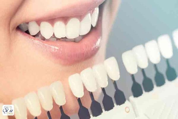 طول عمر لمینت دندان