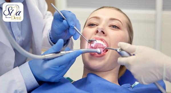 مراحل جرم گیری دندان