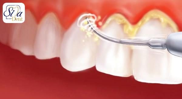 جرم گیری دندان چیست