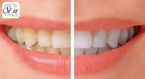 معایب جرمگیری دندان