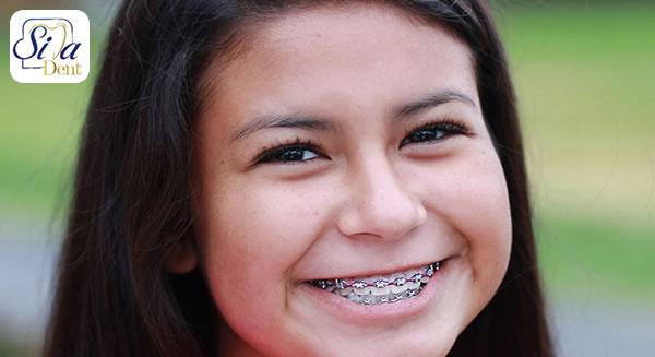 درمان ارتودنسی در نوجوانان
