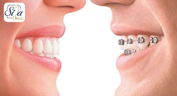 ارتودنسی و ایمپلنت دندان