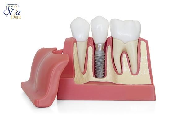 کاشت دندان در طول ارتودنسی