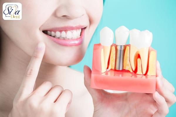 نکات مهم کاشت دندان و ارتودنسی