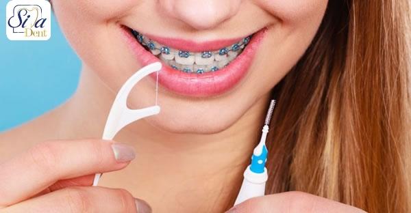 نحوه کشیدن نخ دندان در ارتودنسی
