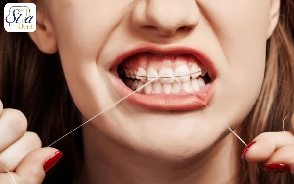 نکات مهم کشیدن نخ دندان ارتودنسی