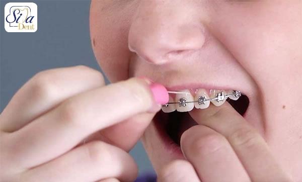 نکات طلایی کشیدن نخ دندان ارتودنسی