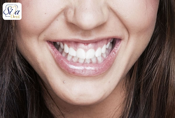 درمان لبخند لثه ای با جراحی فک