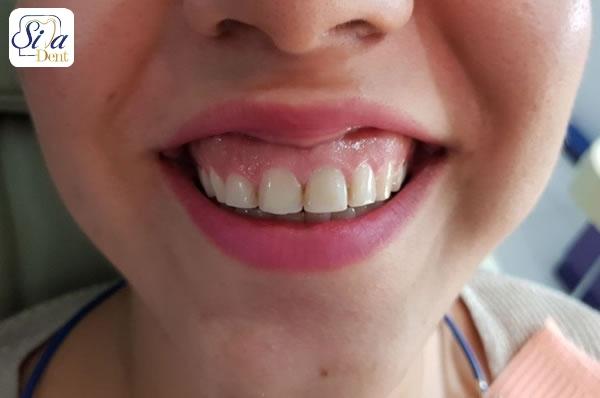 الکتروسرجری و لبخند ارتودنسی