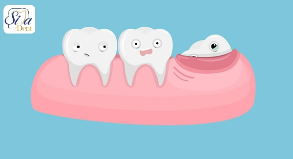 دندان عقل نهفته, دندان عقل نهفته