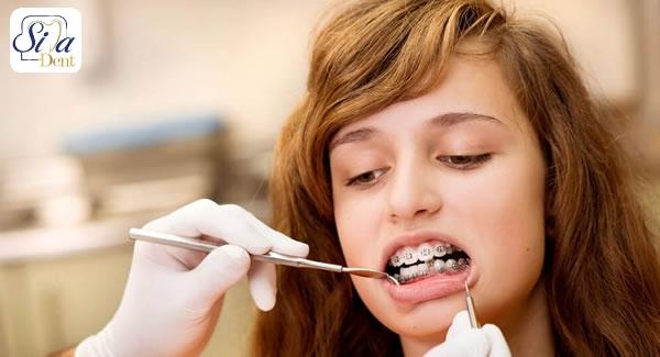 تاثیر بهداشت دهان و دندان در طول درمان ارتودنسی