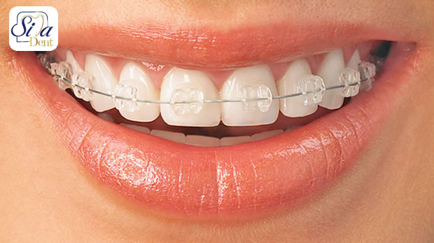 ردیف کردن دندان ها با ارتودنسی