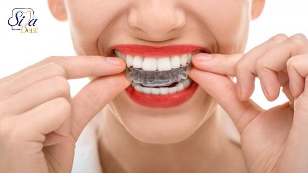 معایب ردیف کردن دندان ها با ارتودنسی
