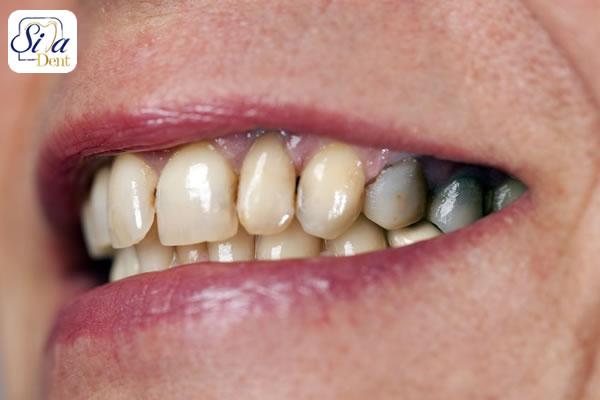 پوسیدگی دندان و دندان درد