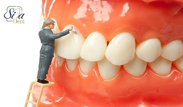 تمیز کردن دندان ها