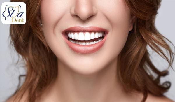 بهم ریختگی دندان ها