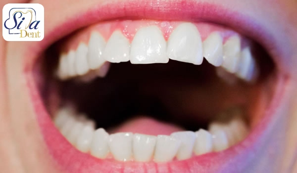 برطرف کردن نامرتبی دندان ها