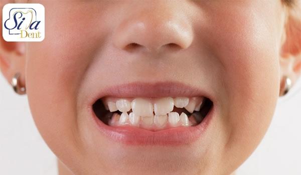 اصلاح نامرتبی دندان ها