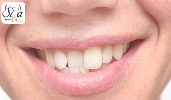 انواع نامرتبی دندان ها