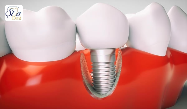 محدودیت سنی کاشت دندان