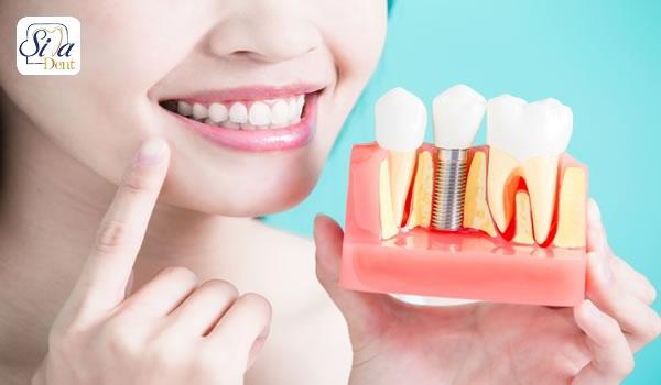 نکات مهم کاشت دندان