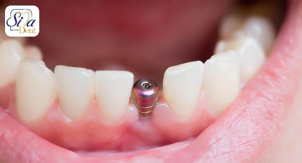 نکات اساسی کاشت دندان