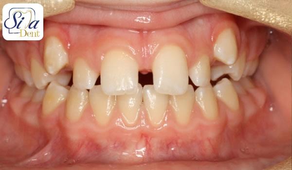 علل ایجاد فاصله بین دندان ها